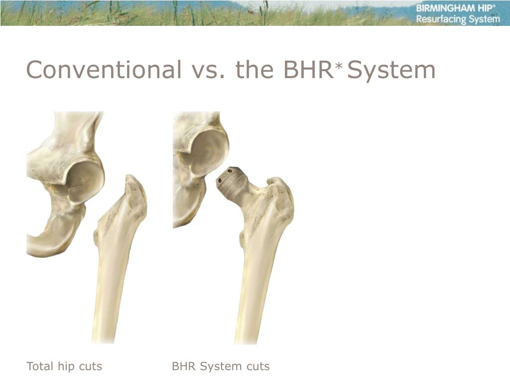 Conventional vs. the BHR