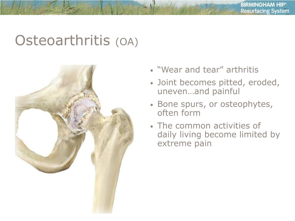 """""""Wear and tear"""" arthritis"""