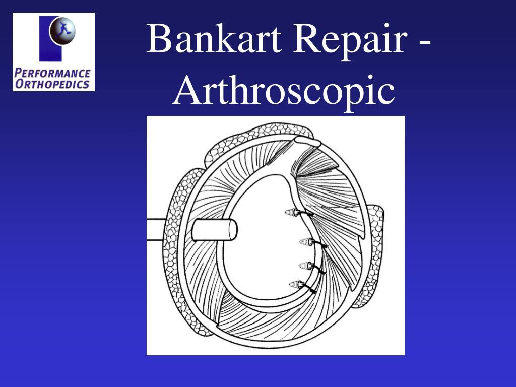 Bankart Repair - Arthroscopic