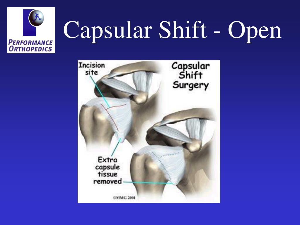 Capsular Shift - Open