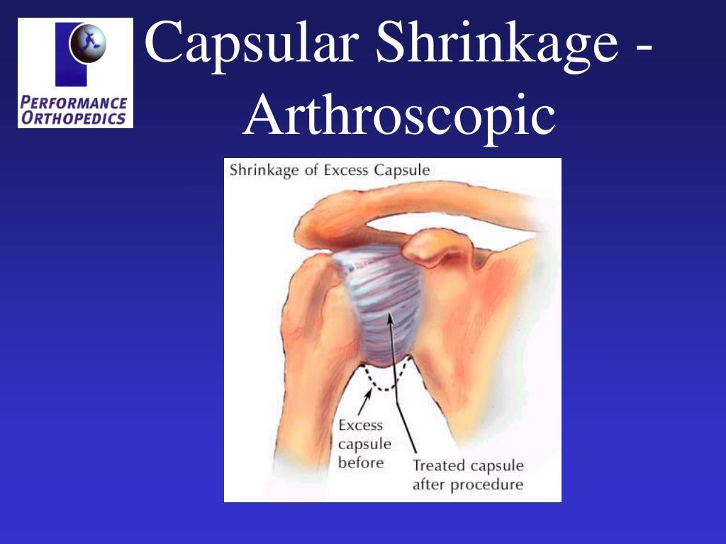 Capsular Shrinkage - Arthroscopic