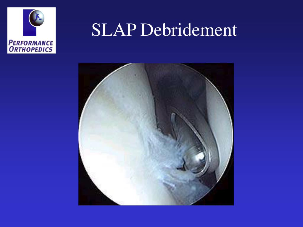 SLAP Debridement