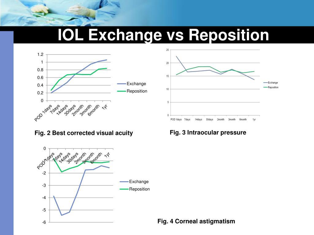 IOL Exchange vs Reposition