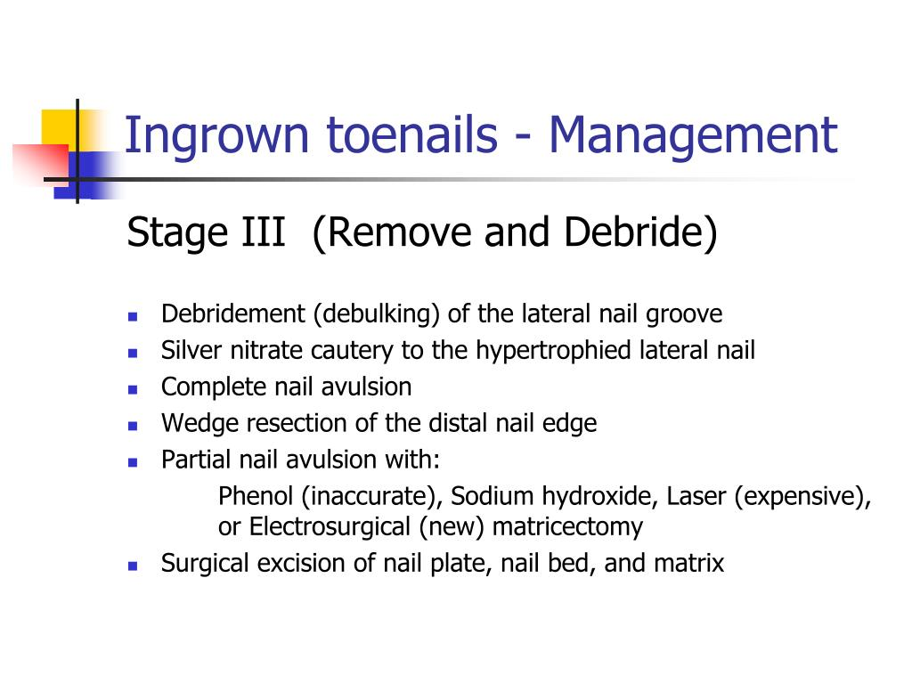Ingrown toenails - Management
