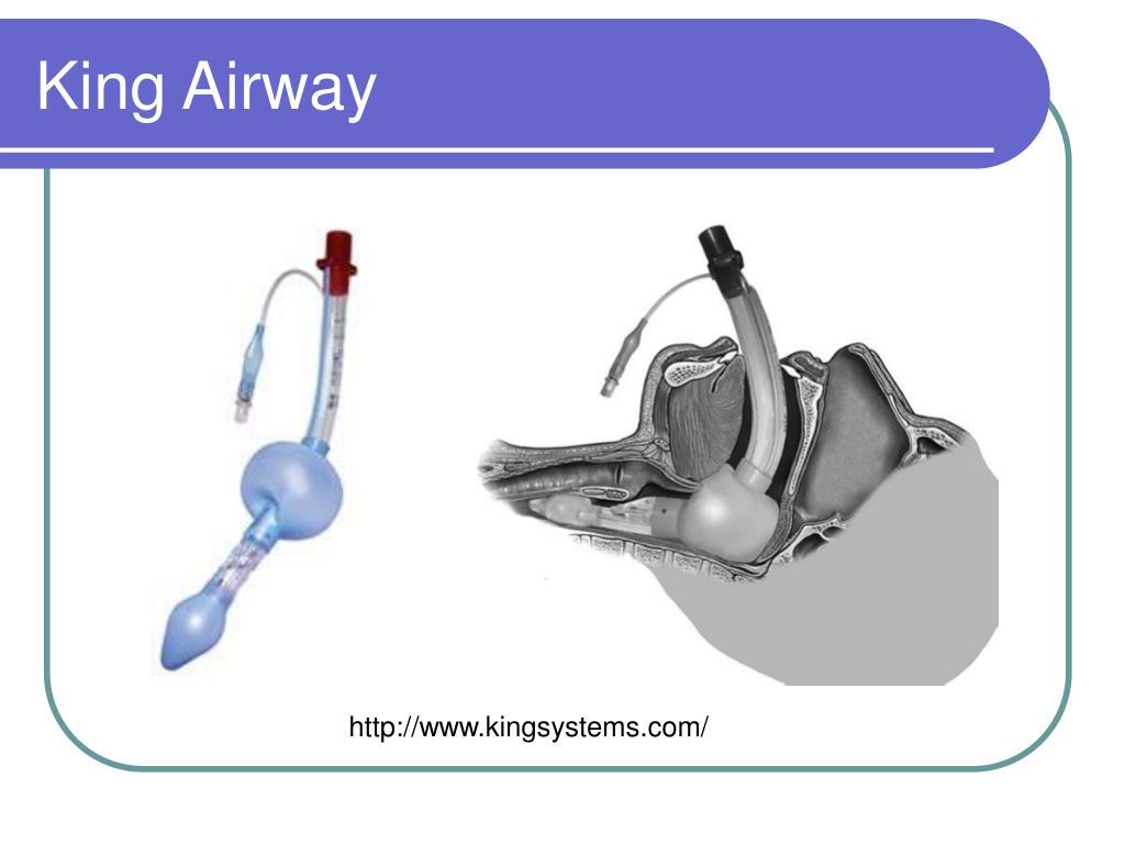 King Airway