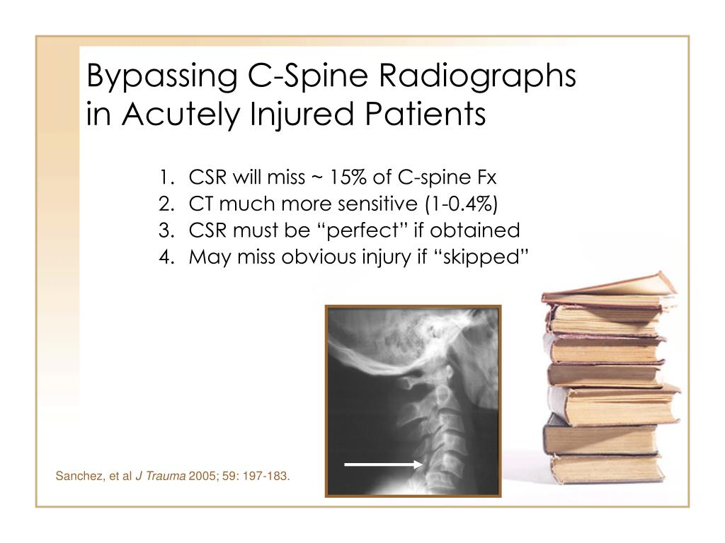 Bypassing C-Spine Radiographs