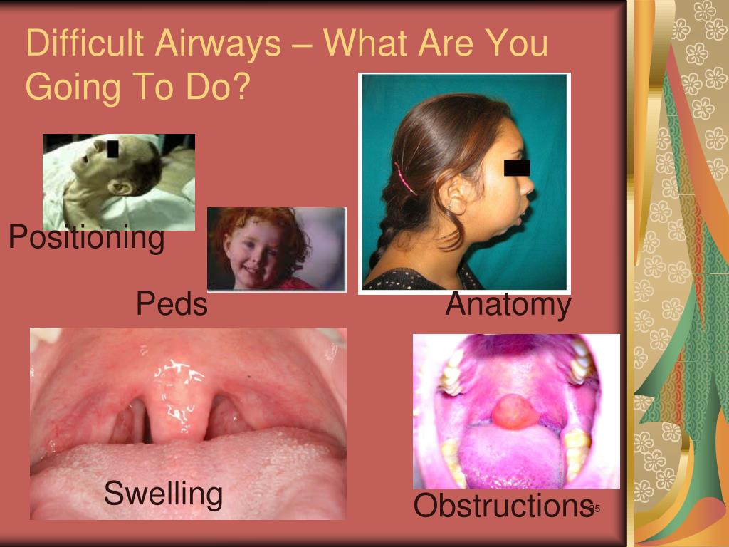Difficult Airways – What Are You Going To Do?