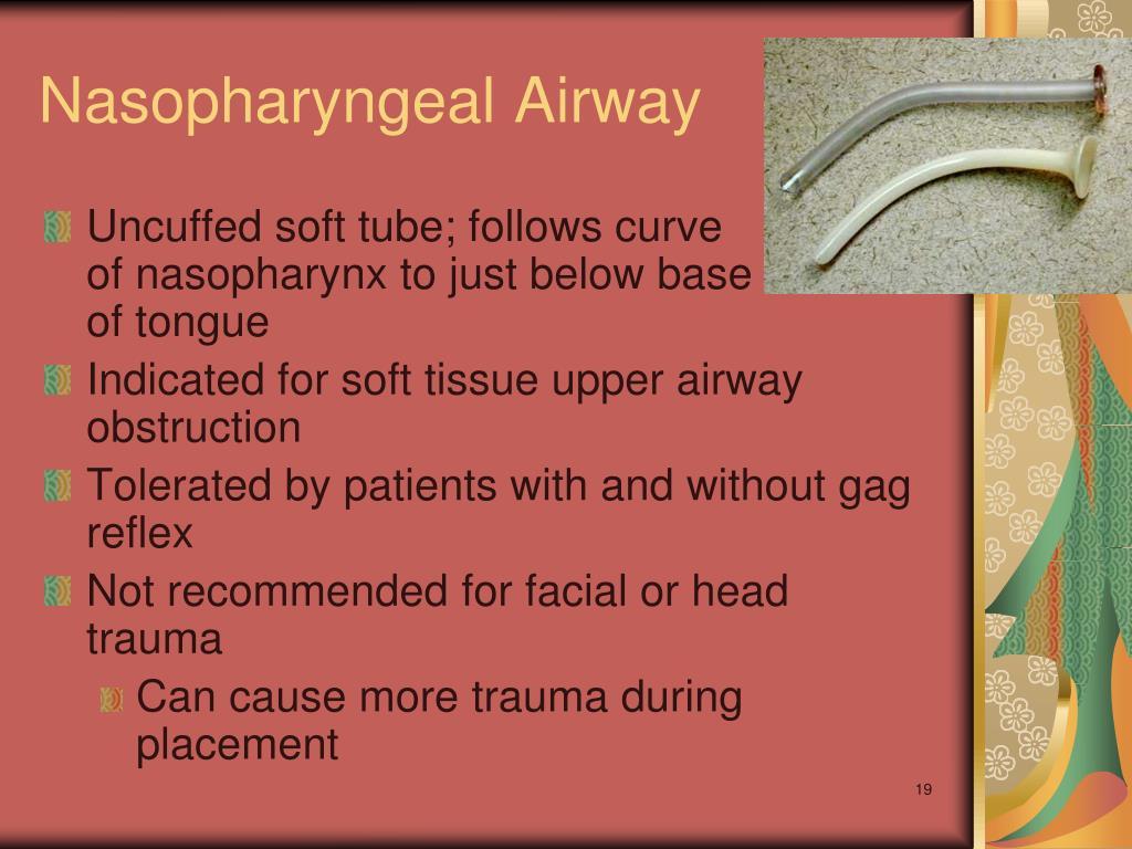 Nasopharyngeal Airway