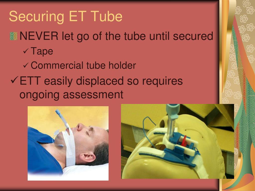 Securing ET Tube