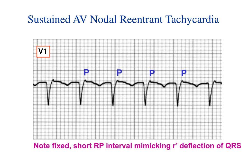 Sustained AV Nodal Reentrant Tachycardia
