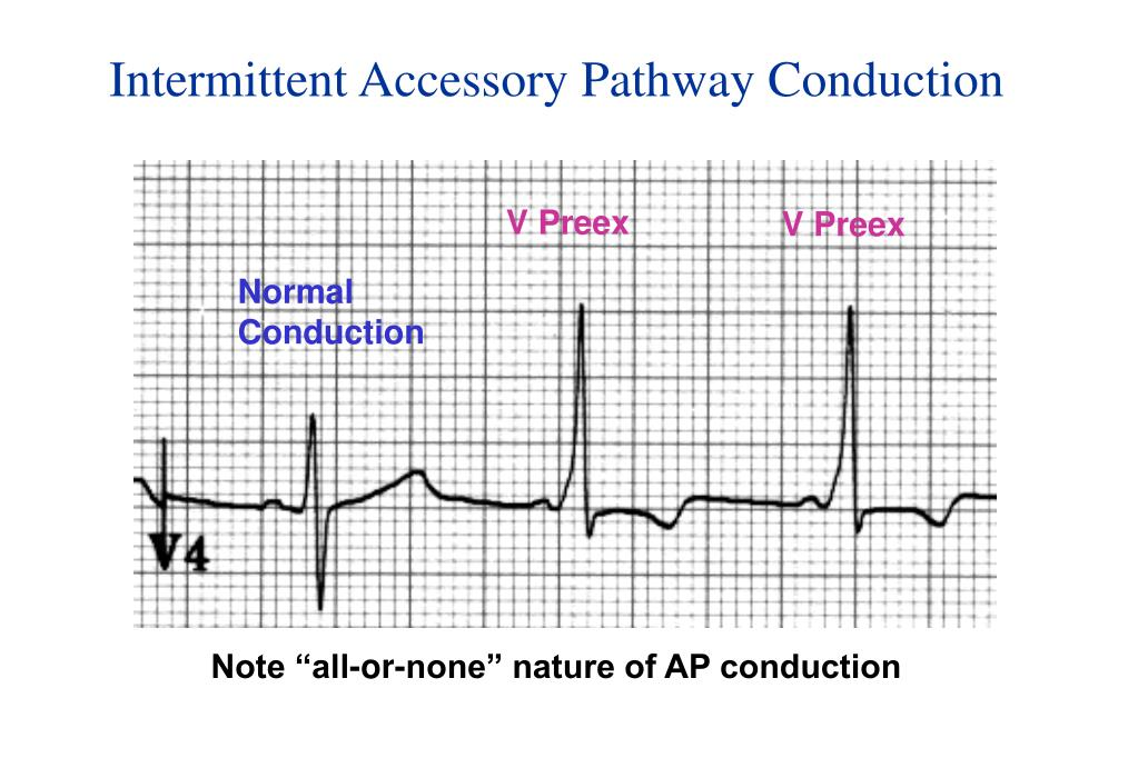 Intermittent Accessory Pathway Conduction