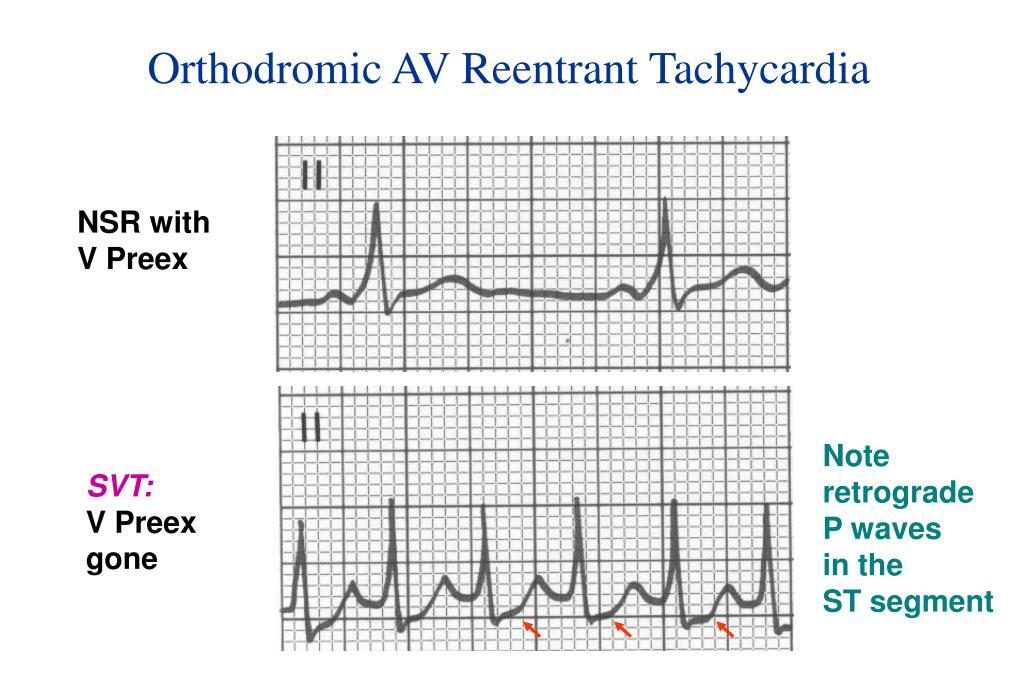 Orthodromic AV Reentrant Tachycardia