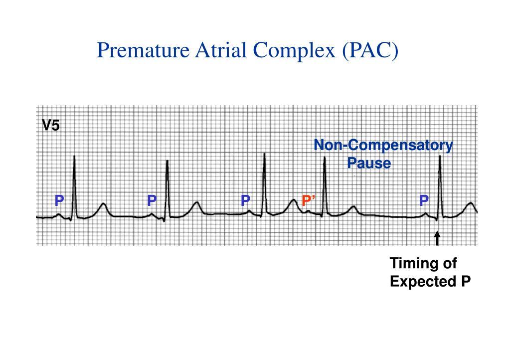 Premature Atrial Complex (PAC)