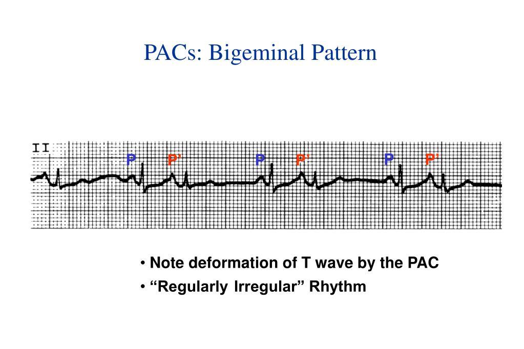 PACs: Bigeminal Pattern