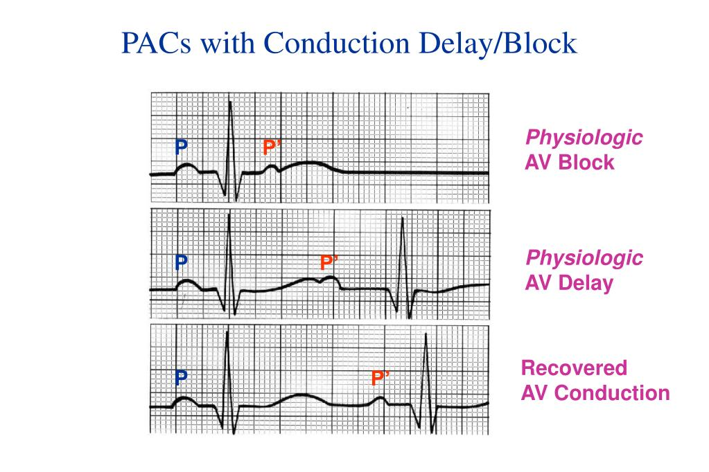 PACs with Conduction Delay/Block