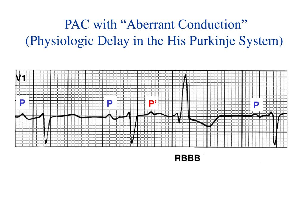 "PAC with ""Aberrant Conduction"""