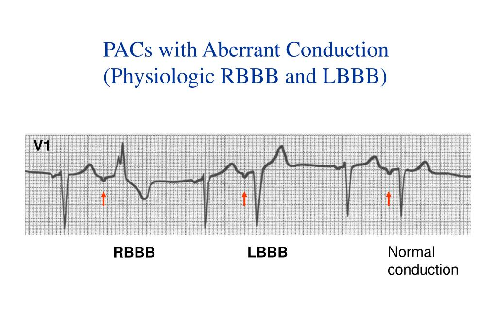 PACs with Aberrant Conduction