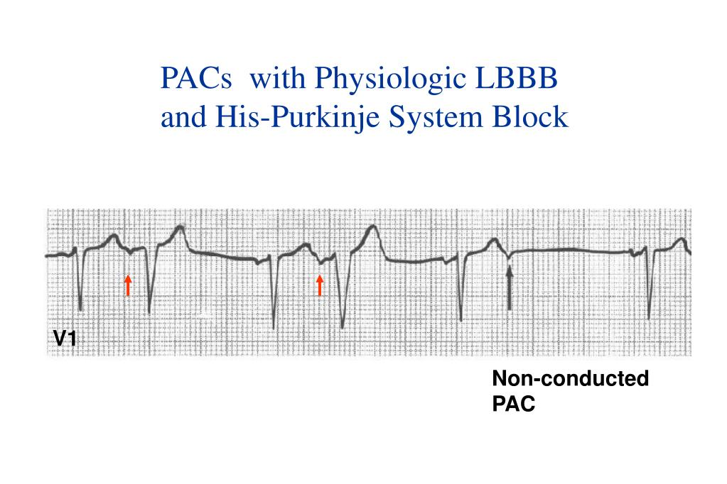 PACs  with Physiologic LBBB