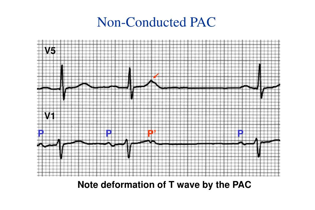 Non-Conducted PAC