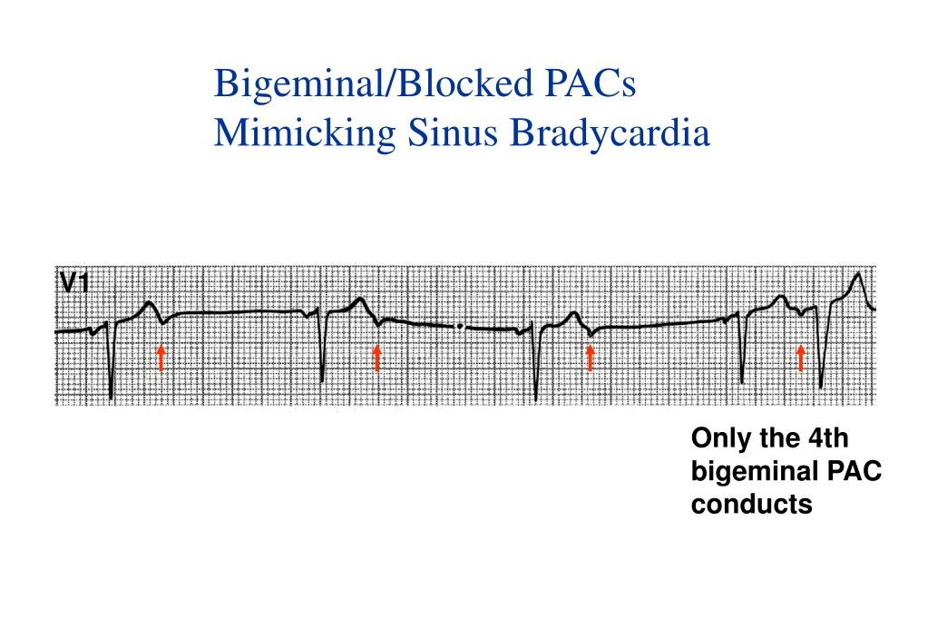 Bigeminal/Blocked PACs
