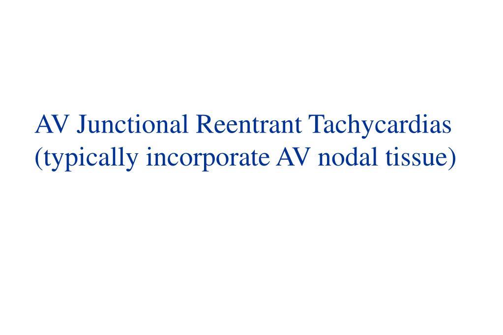AV Junctional Reentrant Tachycardias