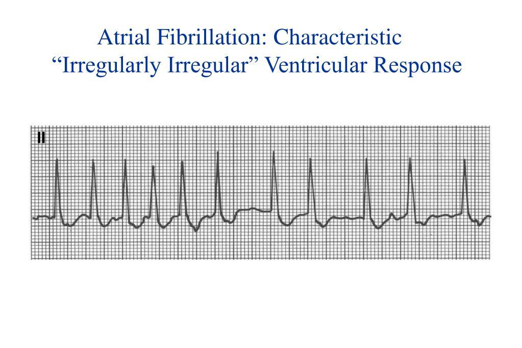 Atrial Fibrillation: Characteristic