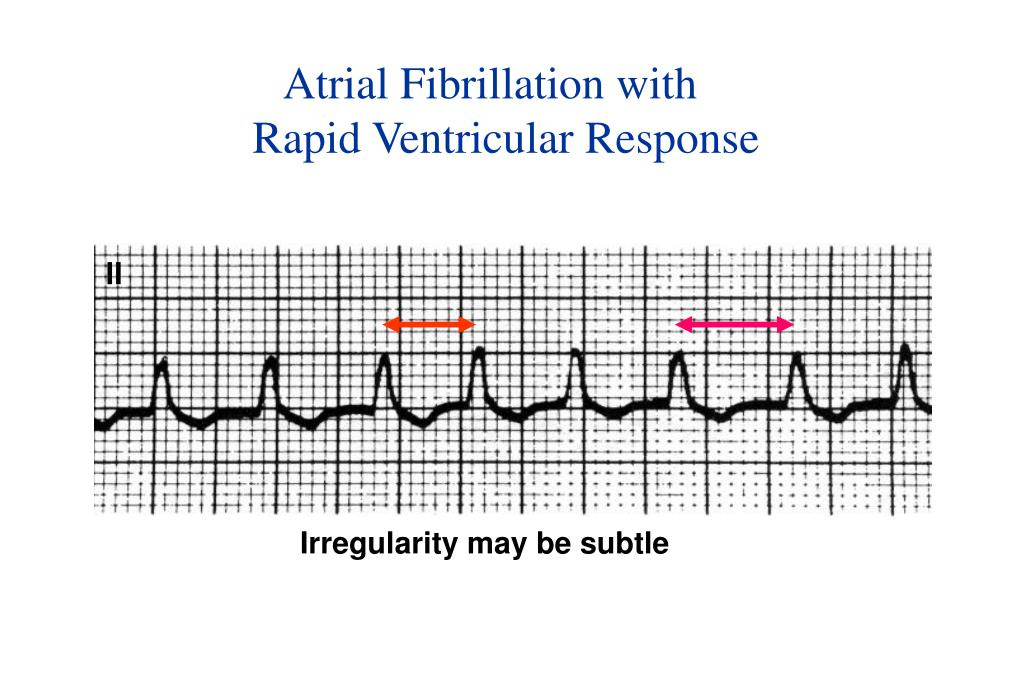 Atrial Fibrillation with