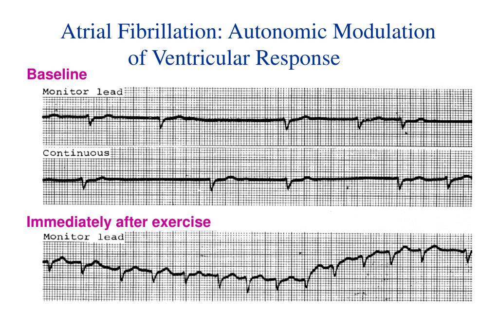 Atrial Fibrillation: Autonomic Modulation