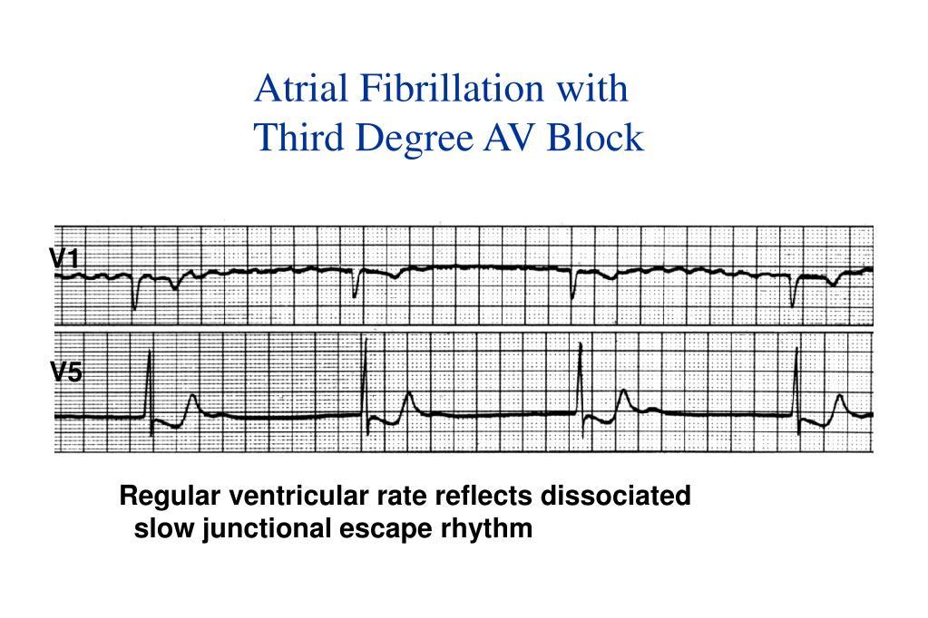 Atrial Fibrillation with
