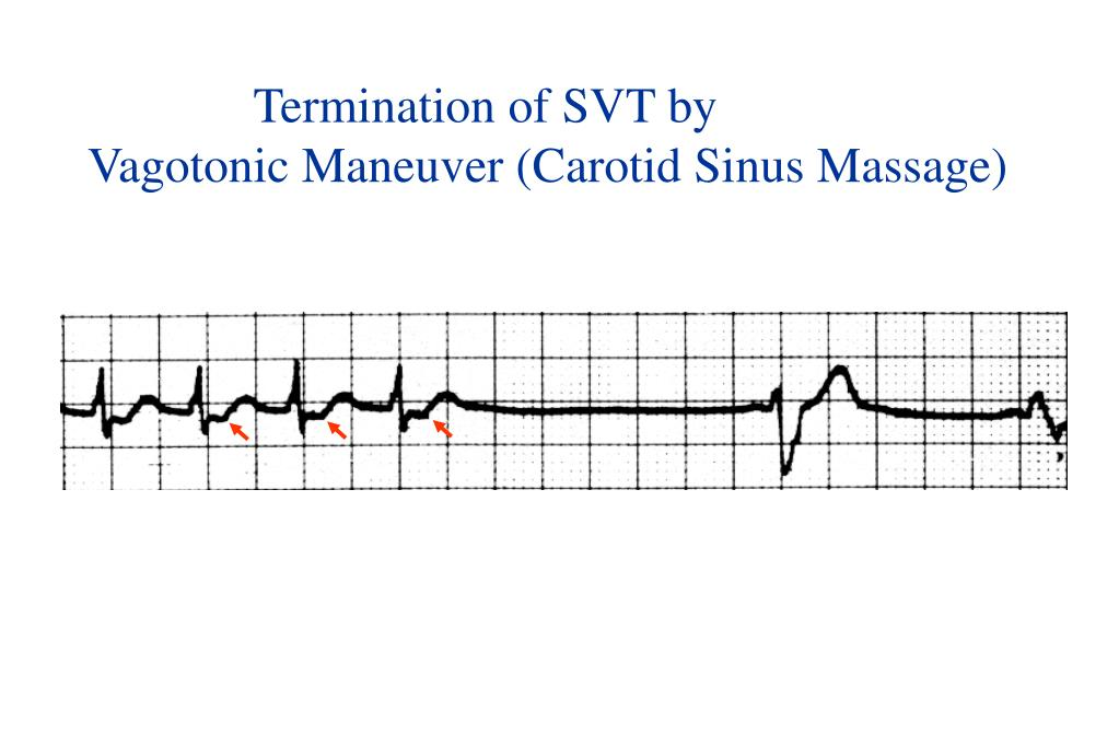 Termination of SVT by