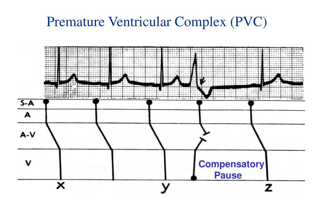 Premature Ventricular Complex (PVC)