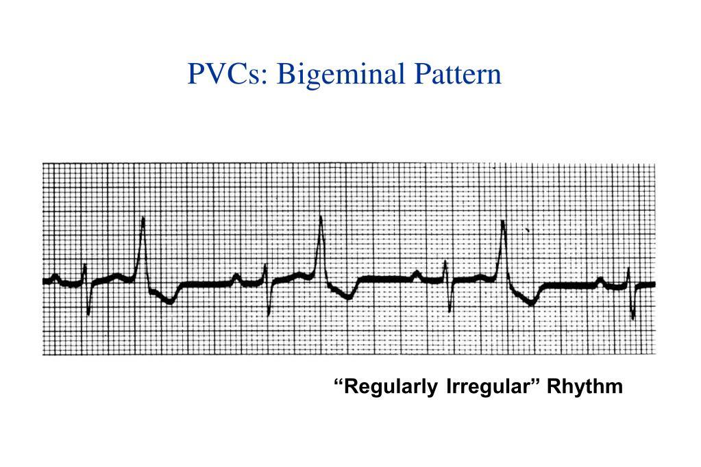 PVCs: Bigeminal Pattern