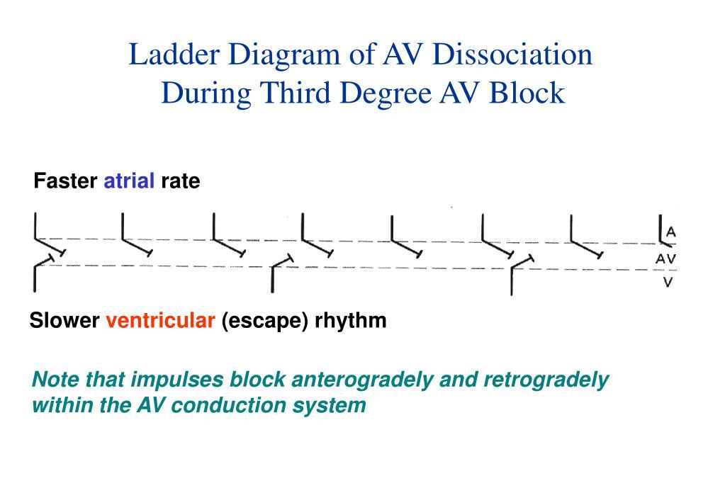 Ladder Diagram of AV Dissociation