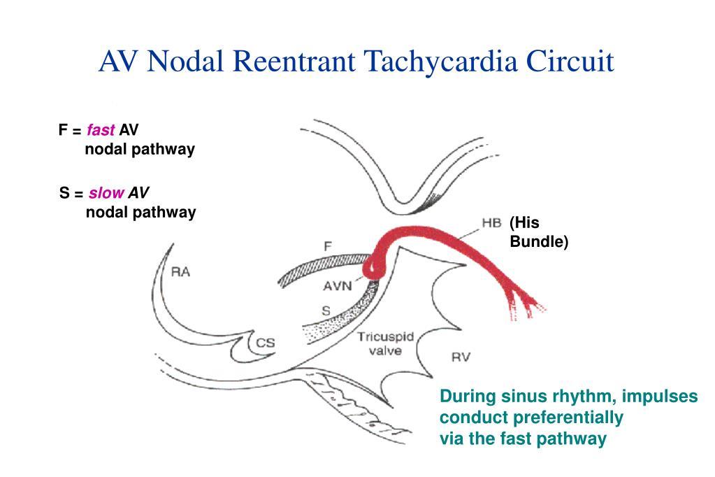 AV Nodal Reentrant Tachycardia Circuit
