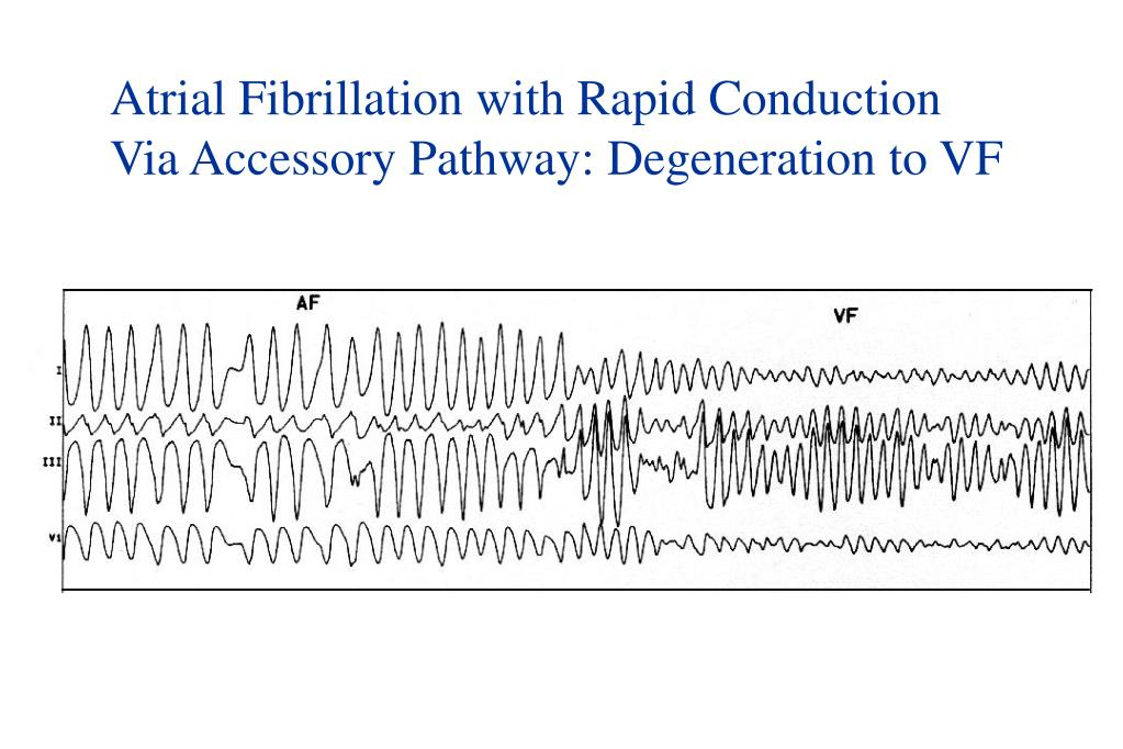 Atrial Fibrillation with Rapid Conduction