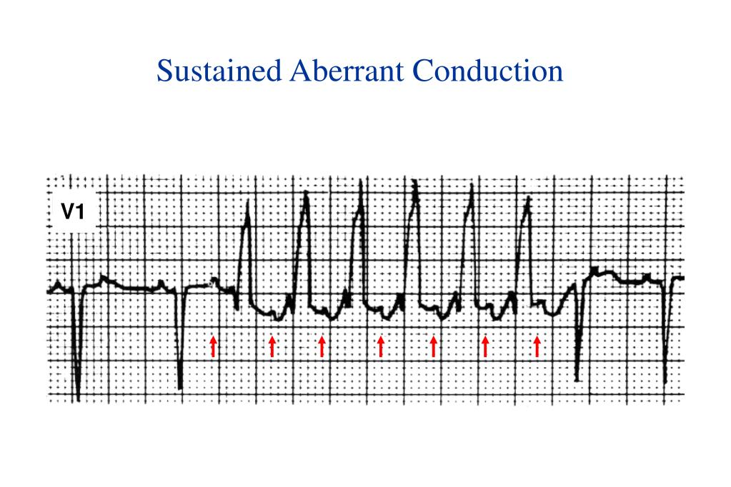 Sustained Aberrant Conduction