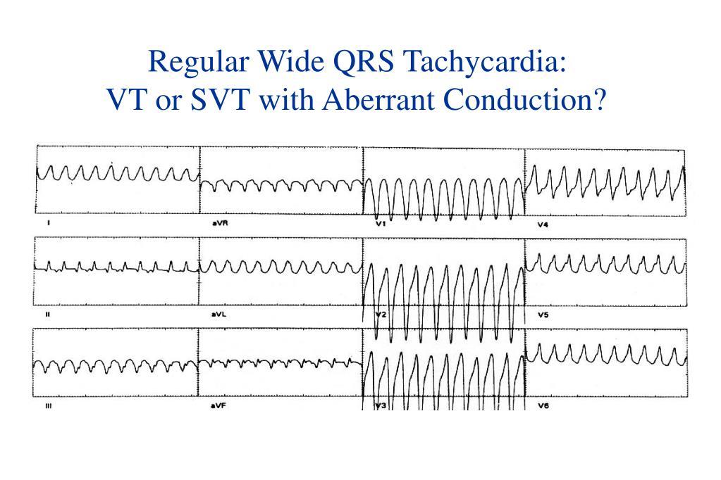 Regular Wide QRS Tachycardia: