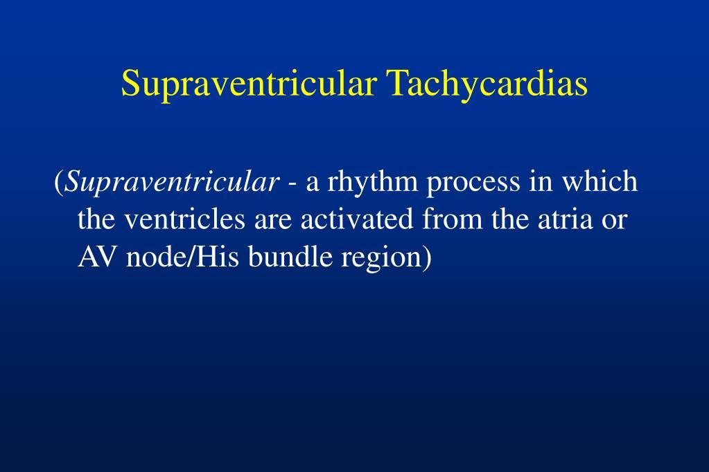 Supraventricular Tachycardias