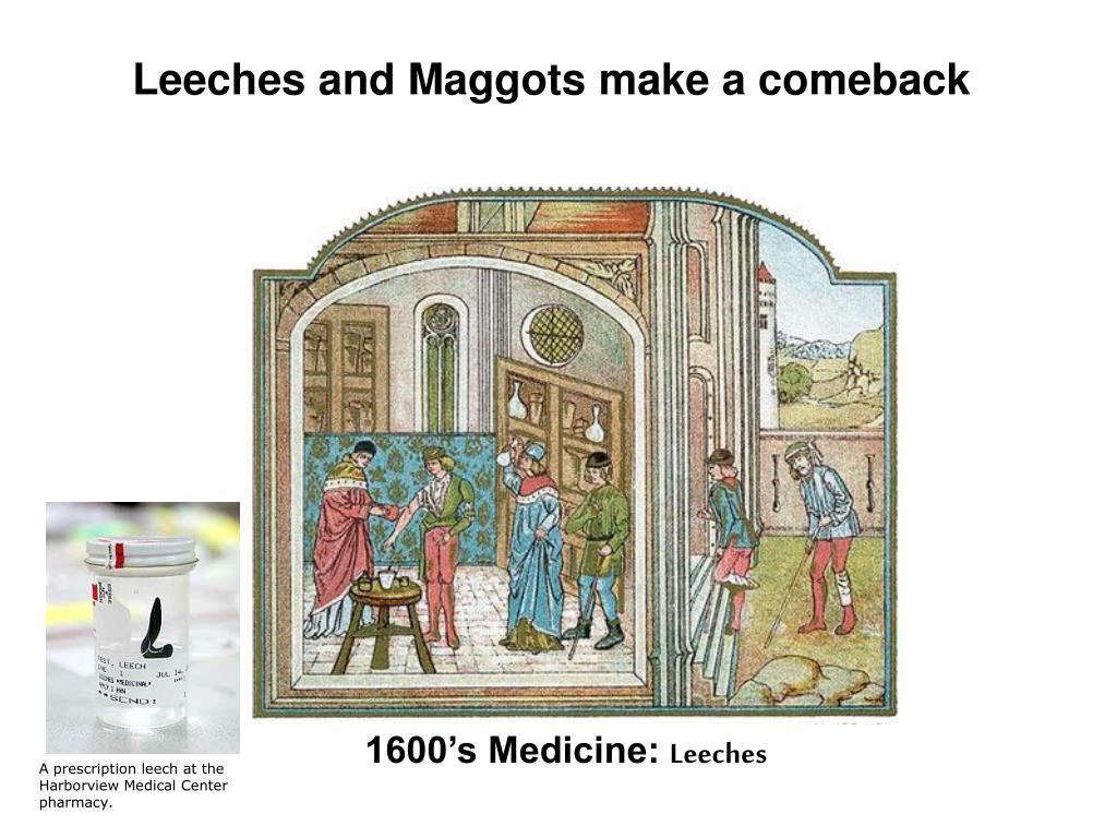 Leeches and Maggots make a comeback