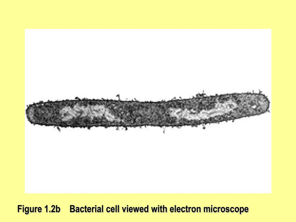 Figure 1.2b    Bacterial cell viewed with electron microscope