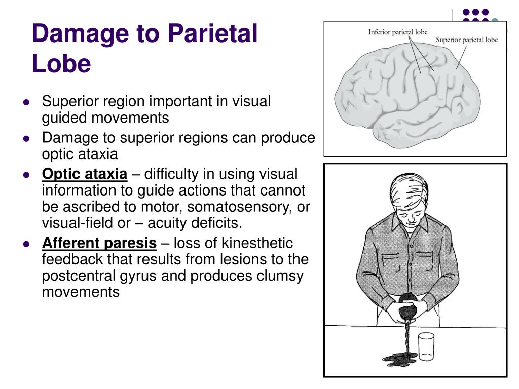 Damage to Parietal Lobe