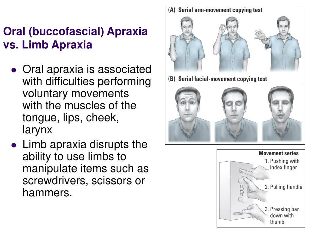 Oral (buccofascial) Apraxia vs. Limb Apraxia