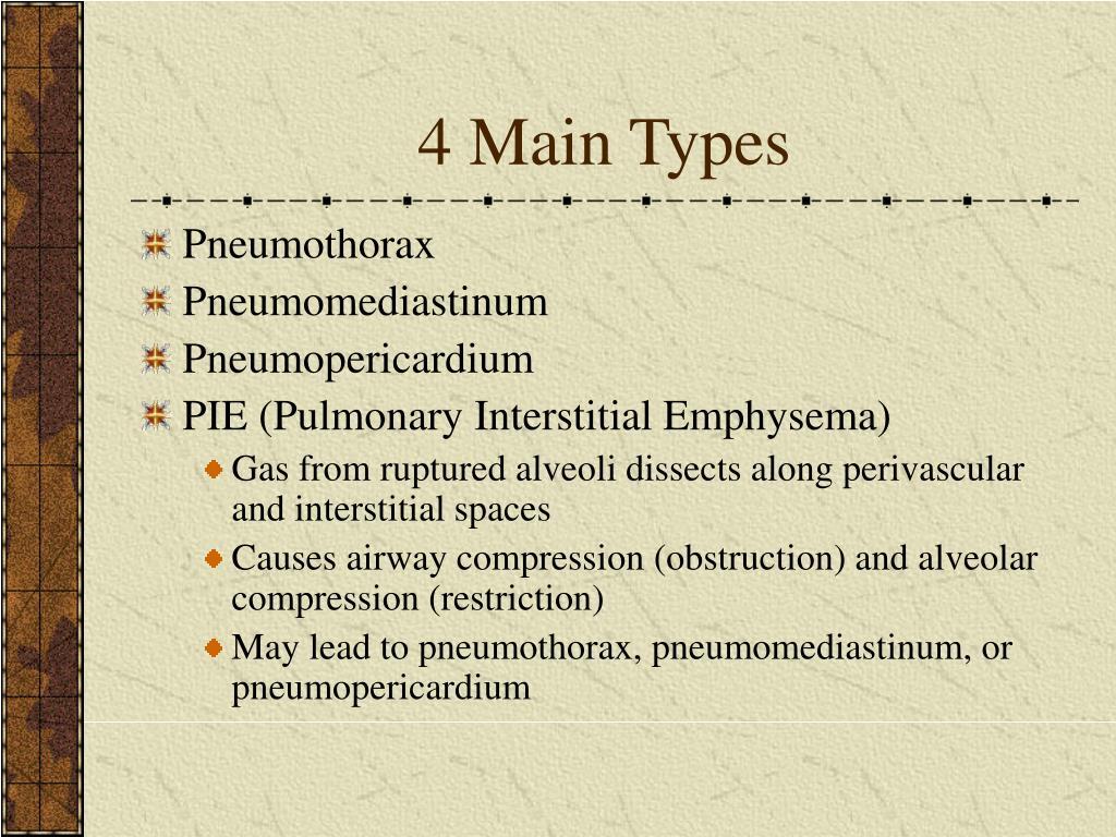 4 Main Types