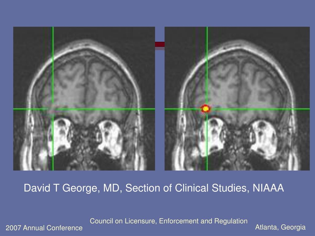 David T George, MD, Section of Clinical Studies, NIAAA