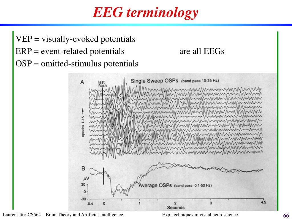EEG terminology