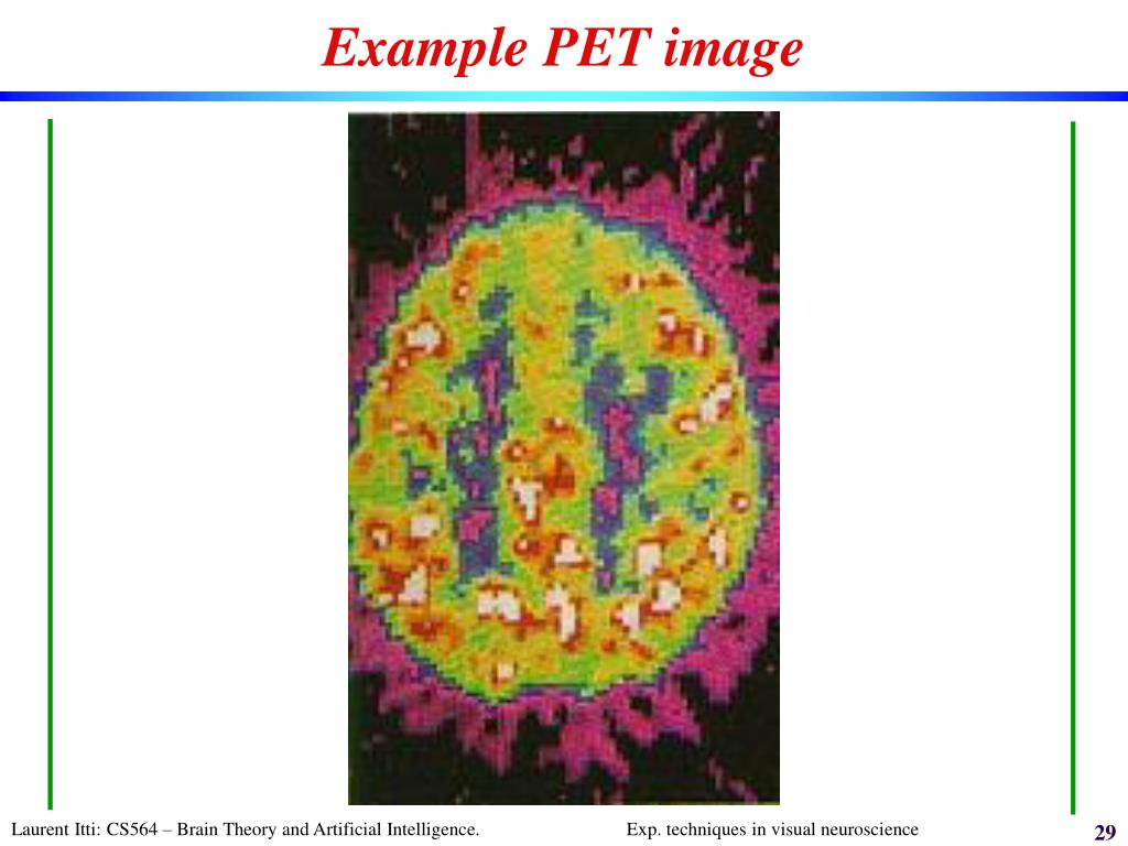 Example PET image