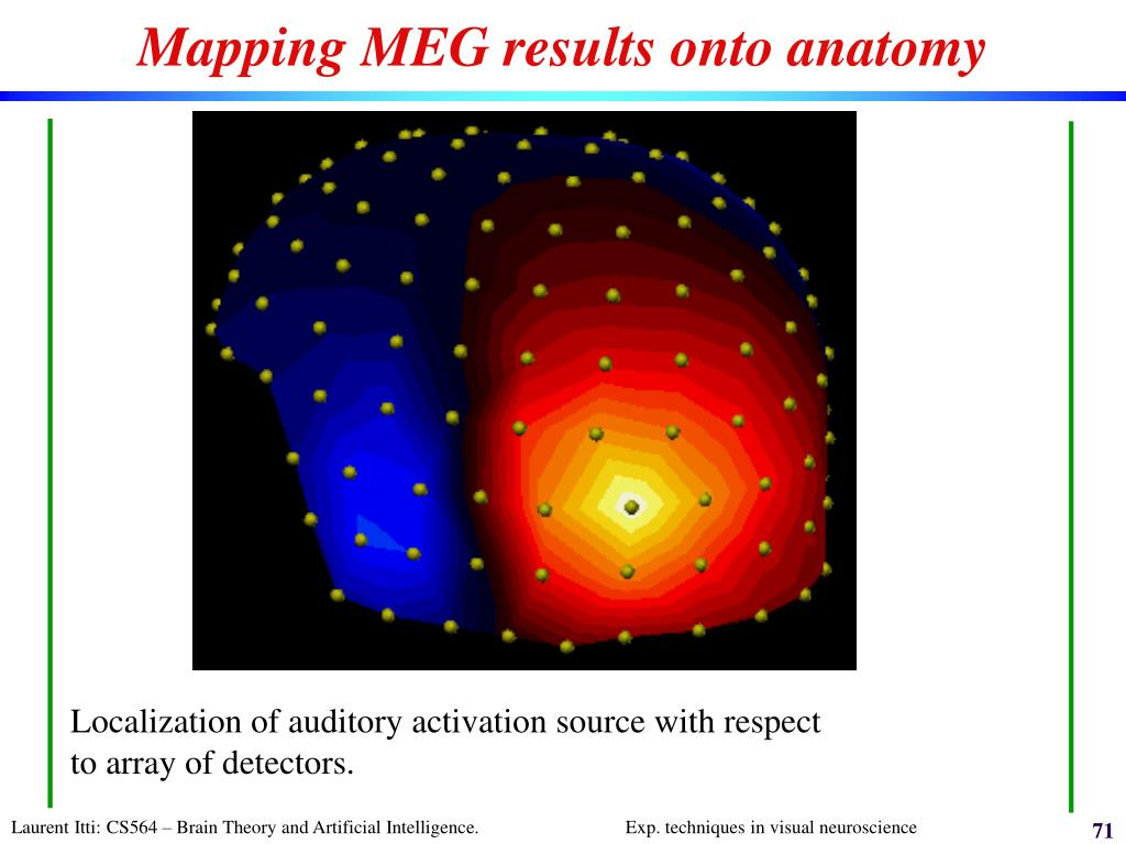 Mapping MEG results onto anatomy