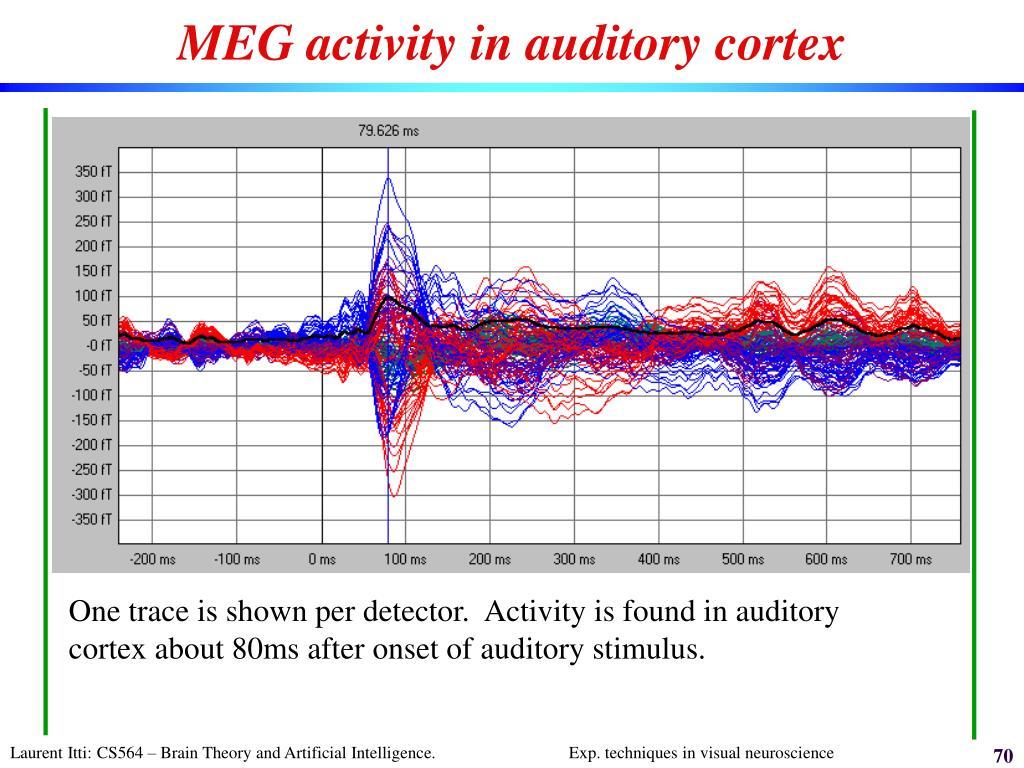 MEG activity in auditory cortex