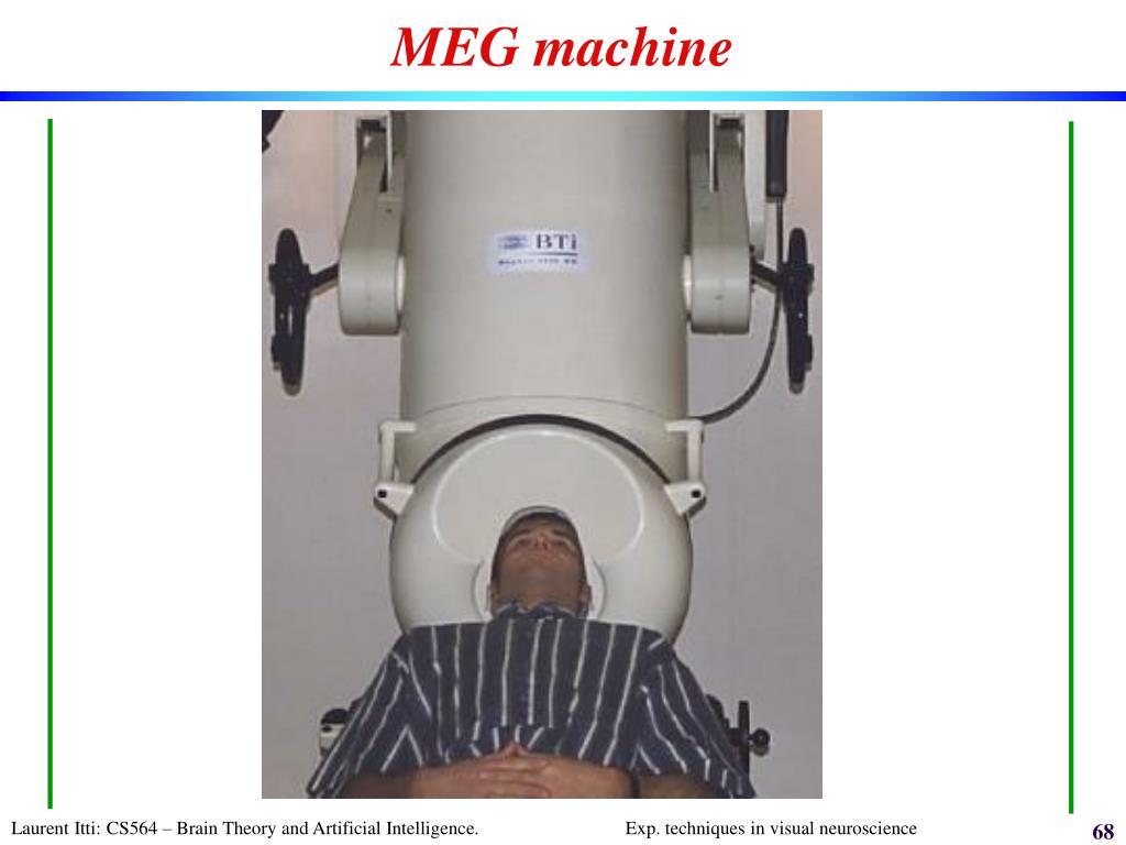 MEG machine