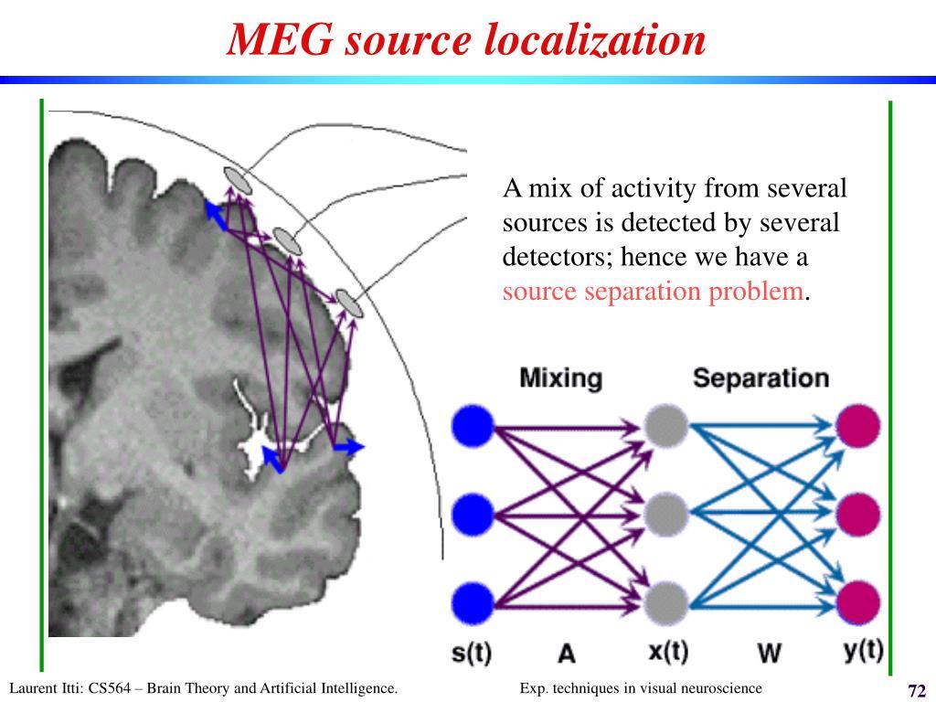MEG source localization